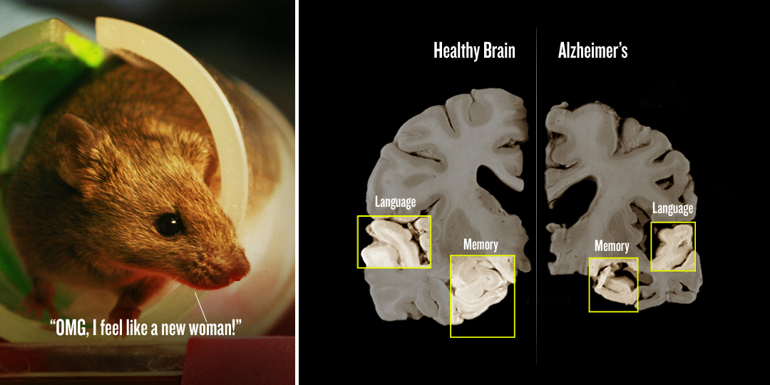 MouseBrain 50% Reversal Of Alzheimers In Mice In 3 Days, And Boosting Memory By Stimulating Your Golden Gate